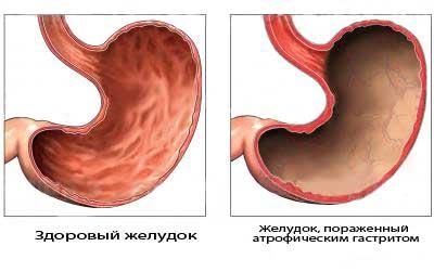 Пораженный атрофическим гастритом желудок