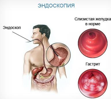 Эндоскопическая диагностика эрозивного гастрита