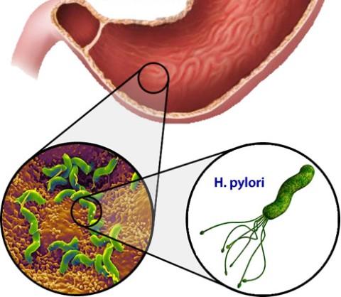 Бактериальные причины гастрита