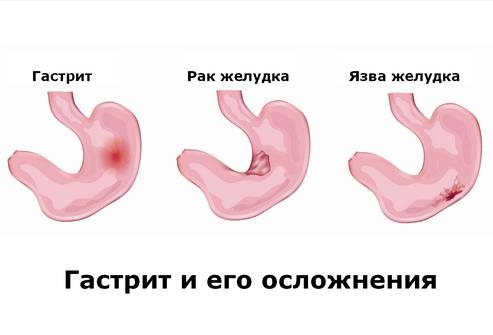 Как вылечить острый гастрит? ostrii-gastrit-stadii-1