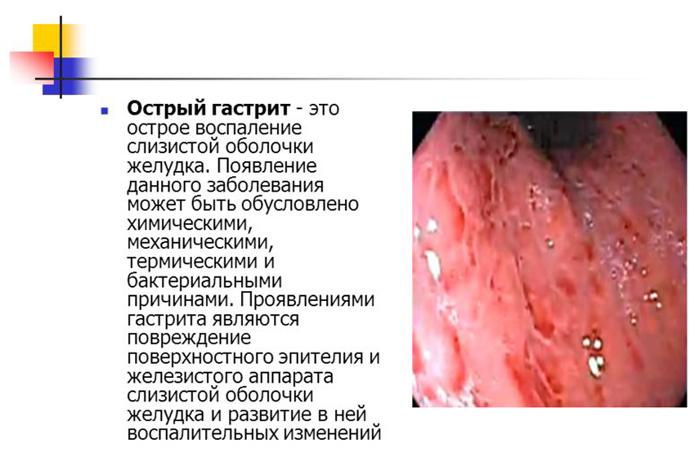Как вылечить острый гастрит? ostriy_gastrit