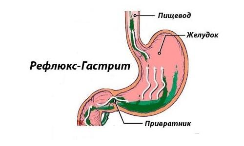 Рефлюкс гастрит: причины, симптомы, лечение refljuks-gastrit
