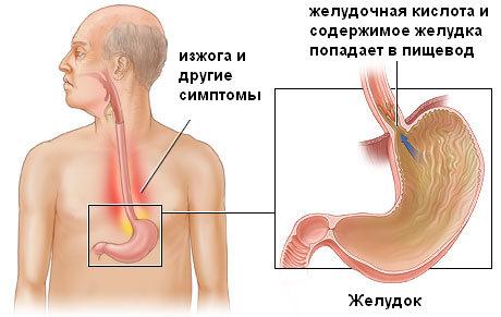 Рефлюкс гастрит: причины, симптомы, лечение reflyuks-ezofagit