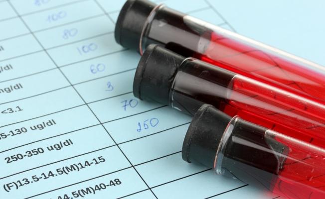 Лабораторный анализ уровня мочевой кислоты в крови