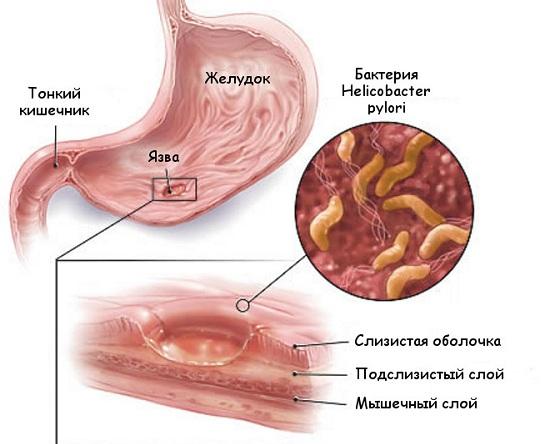Локализация язвенной болезни ЖКТ