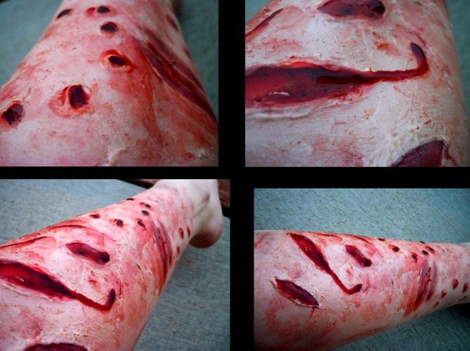 Чем опасен укус собаки, и что при нем нужно делать в первую очередь? iskusala_sobaka