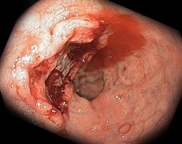 Кровотечение при язвенном заболевании ЖКТ