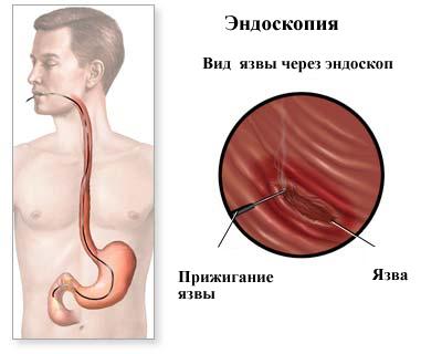 Эндоскопический обзор язвенного дефекта