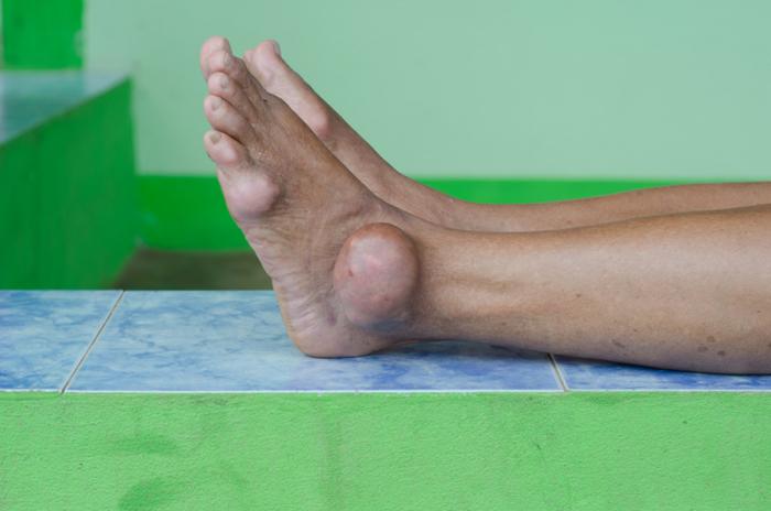 Поражение суставов на фоне повышенного количества мочевой кислоты