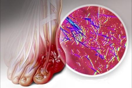 Как можно вывести мочевую кислоту? podagra_prichina_mochevaya_kislota
