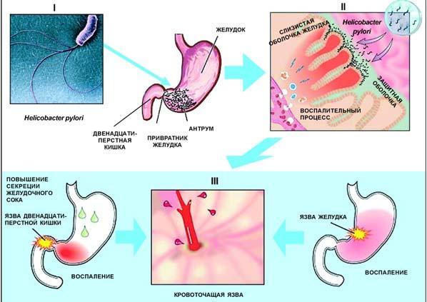 Причины язвенных поражений желудочно-кишечного тракта
