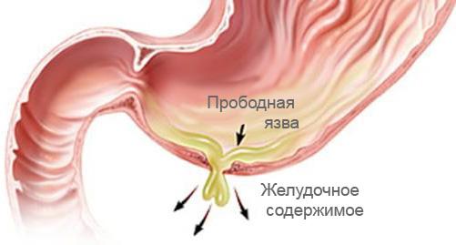 Схематическое изображение прободения желудка