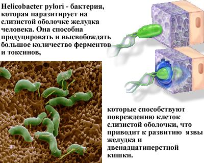 H. Pylori ответственна за большинство случаев язвы двенадцатиперстной кишки