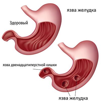 Отличия здорового желудка от пораженного язвенными дефектами
