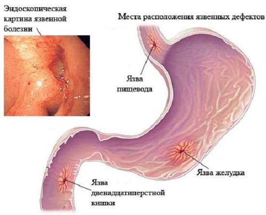 Локализация язвенных дефектов в желудочно-кишечном тракте