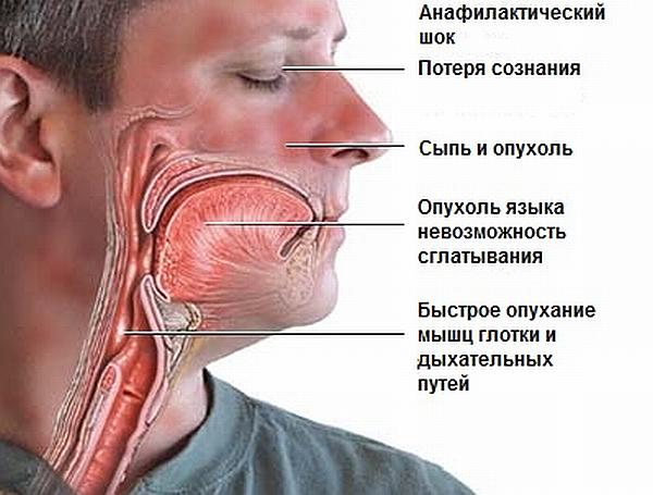 """Анафилактический шок при приеме """"Но-Шпы"""""""