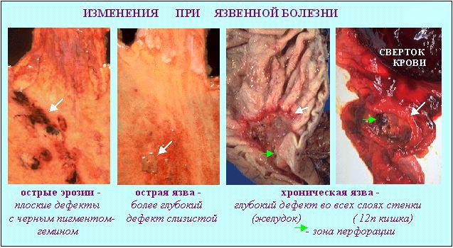 Стадии язвенного поражения желудка и 12-перстной кишки