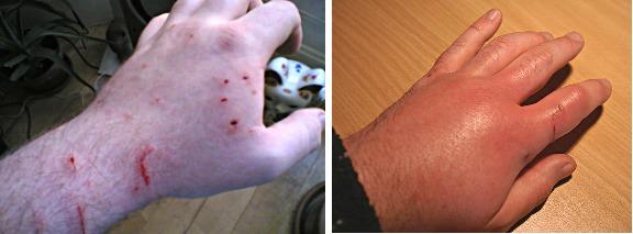 Последствия укуса кошки