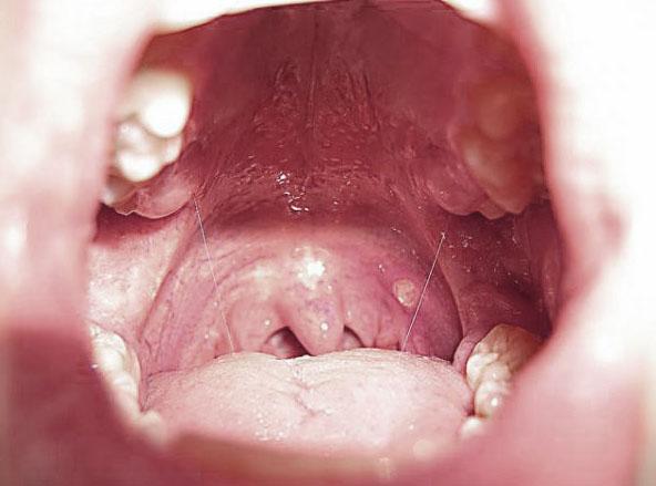Лечение кашля и простуды народными средствами в домашних условиях