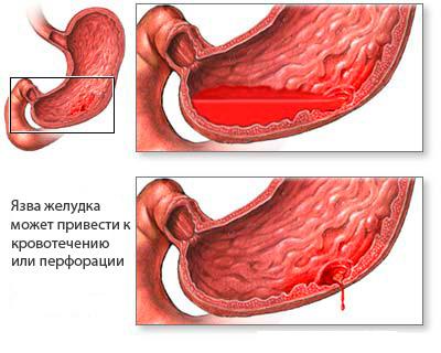 Кровотечение и перфорация при язвах желудка