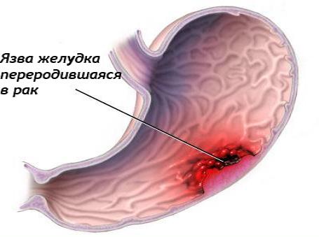 Перерождение язвы желудка в раковую опухоль