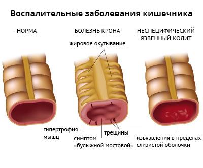 Отличия язвенного колита от других заболеваний ЖКТ
