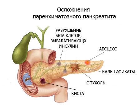 Панкреатит: причины, симптомы, лечение и прогноз anatomiya_podzheludochnoy_zhelezi