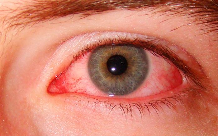 Последствия попадания нашатырного спирта в глаз