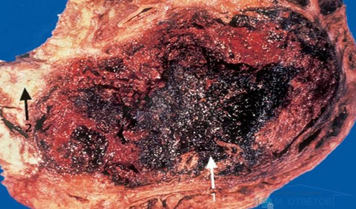 Пораженная панкреонекрозом поджелудочная железа
