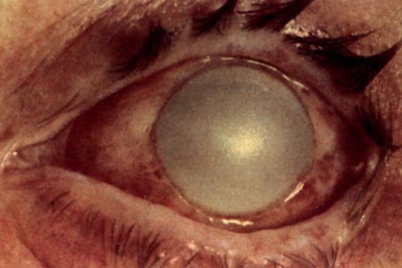 Последствия попадания ацетона в глаз