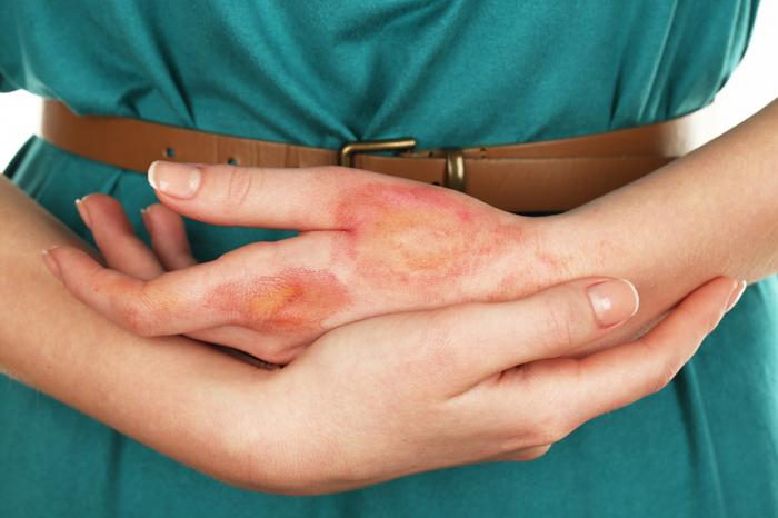 Последствия попадания ацетона на кожу
