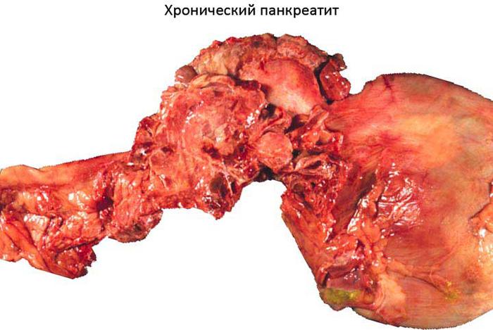 Панкреатит: причины, симптомы, лечение и прогноз porazheniya_pri_pankreatite