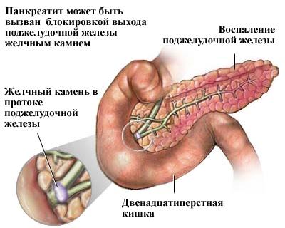 Панкреатит: причины, симптомы, лечение и прогноз prichini_pankreatita