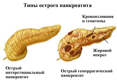 Панкреатит: причины, симптомы, лечение и прогноз tipi_ostrogo_pankreatita
