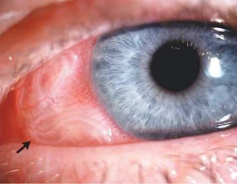 Поражение глаза при дирофиляриозе