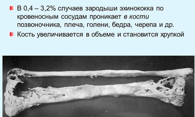 Эхинококкоз у человека: симптомы, лечение, прогноз ehinokokkoz_kostey-e1473680554752