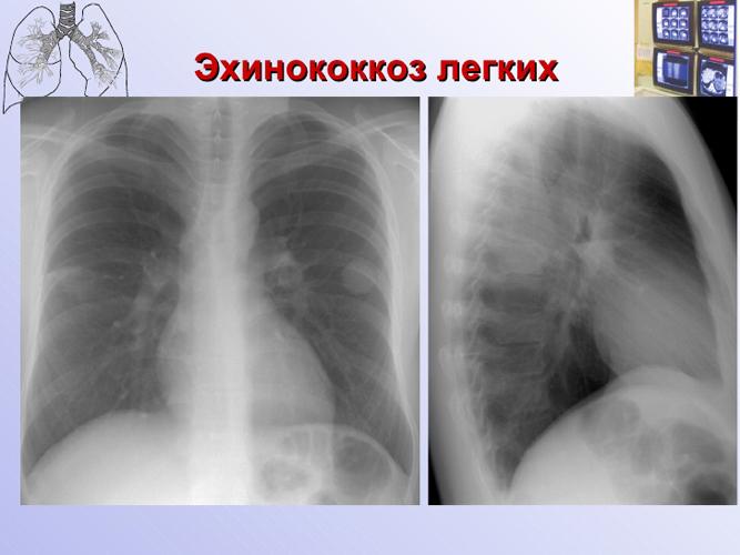 Эхинококкоз печени и лёгких