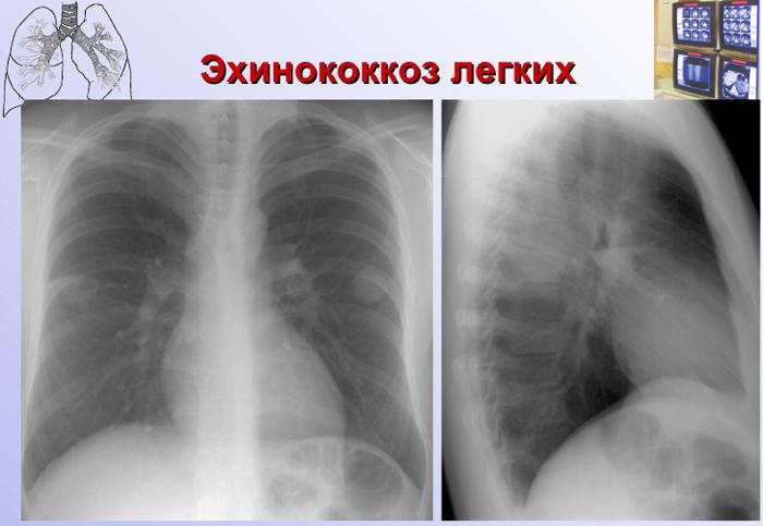 паразиты в легких человека