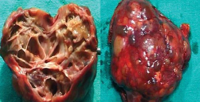 Эхинококкоз у человека: симптомы, лечение, прогноз ehinokokkoz_zhelchnih_putey