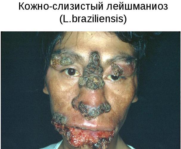 Поражение лица при кожно-слизистом лейшманиозе