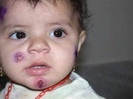 Кожно-слизистый лейшманиоз у ребенка
