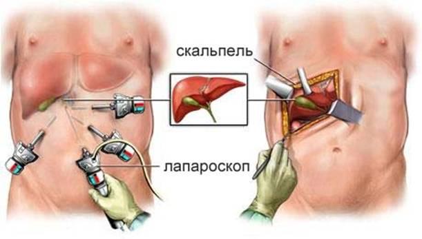 Эндоскопическая и классическая операция при холецистопанкреатите