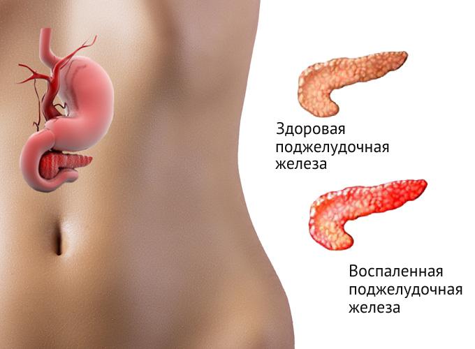 Здоровая и пораженная панкреатитом поджелудочная железа