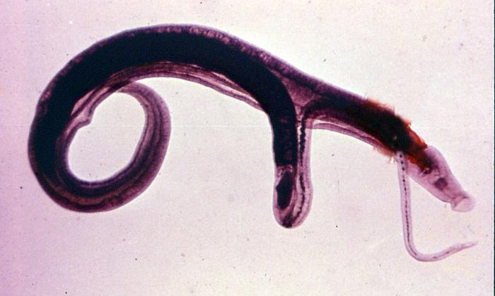 Шистосома у человека: симптомы, лечение parazit_shistosoma