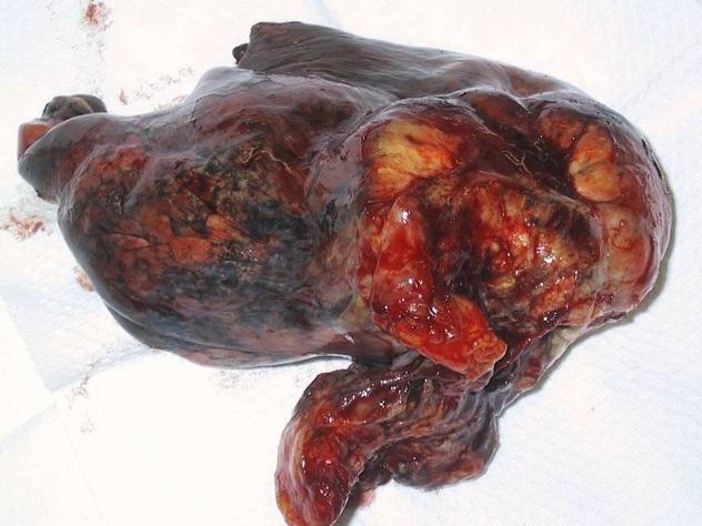 Чем опасен панкреатит и холецистит? posledstviya_pankreatita_i_holecestita