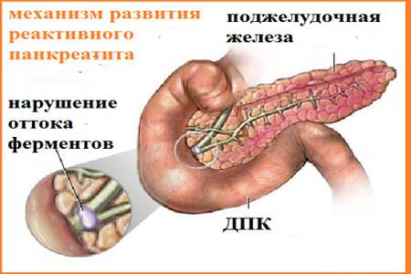 Механизм развития реактивного панкреатита