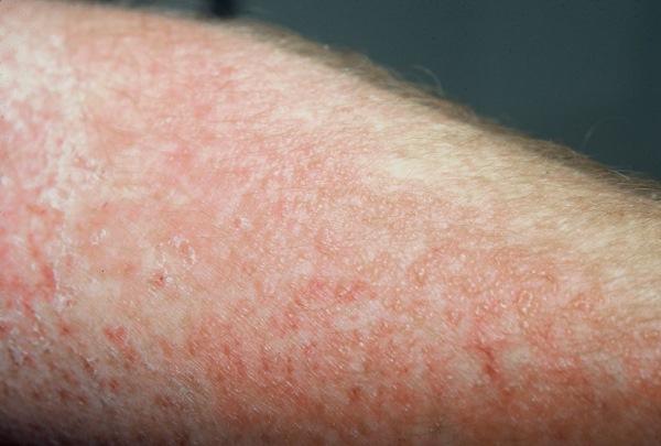 Аллергическая реакция при инвазии широкого лентеца