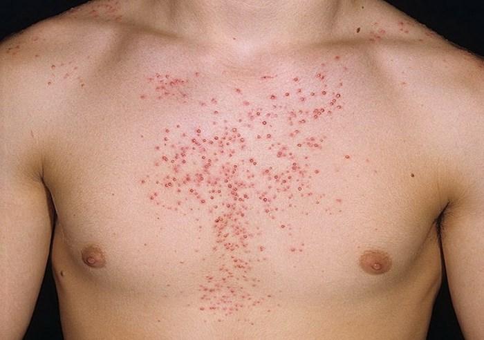 Шистосома у человека: симптомы, лечение shistosoma_dermatit