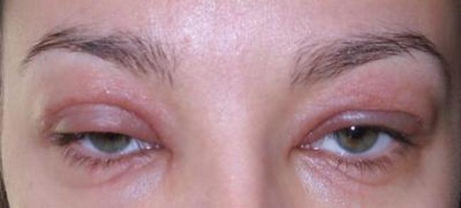 Воспаление глаза при телязиозе у человека