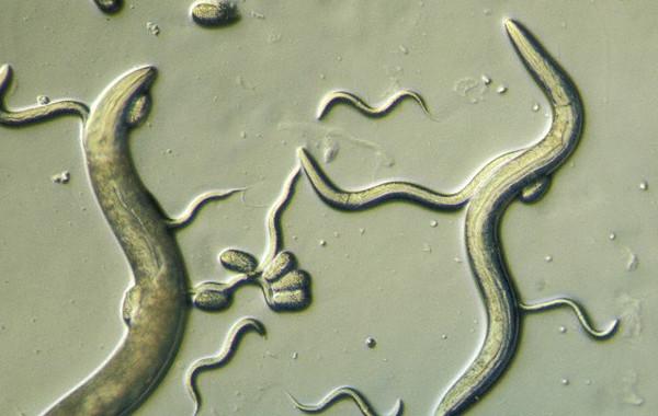 Стронгилоидоз человека под микроскопом